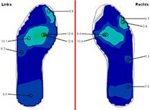 Fußdruckmessung nach EInlagenversorgung